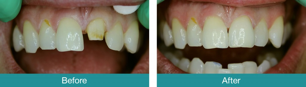 Central-Crown-Dark-Tooth-before-and-after