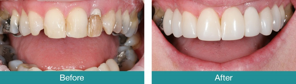 Composite-Veneers-before-and-after