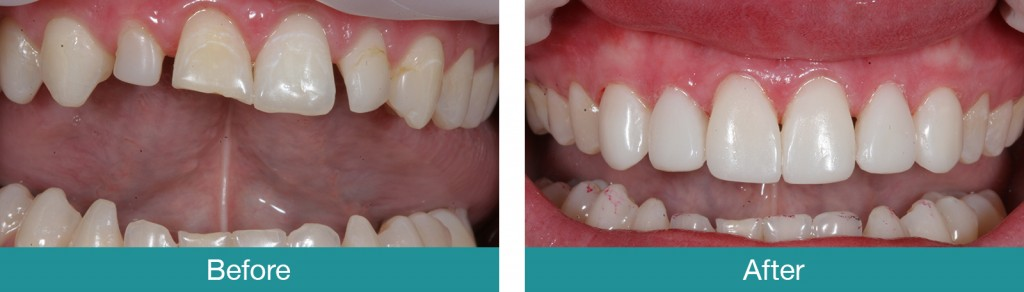 Worn-and-Broken-Teeth-before-and-after