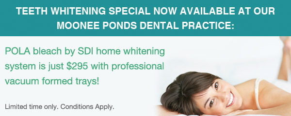 teeth-whitening-special-2